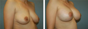 Breast Augmentation Procedure Patient 11