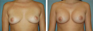 Breast Augmentation Procedure Patient 12