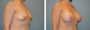 Breast Augmentation Procedure Patient 2