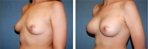 Breast Augmentation Procedure Patient 4