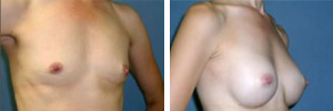 Breast Augmentation Procedure Patient 6