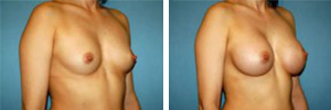Breast Augmentation Procedure Patient 7