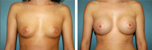 Breast Augmentation Procedure Patient 8