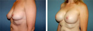 Breast Augmentation Procedure Patient 9