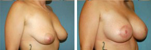 Breast Lift Procedure Patient 1