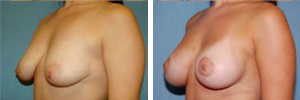 Breast Lift Procedure Patient 2