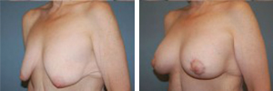 Breast Lift Procedure Patient 3
