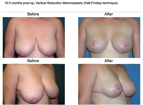 Breast Lift and Breast Reduction Surgery Great Neck,