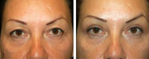 eyelid lift procedure patient 4