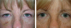 eyelid lift procedure patient 5
