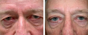 eyelid lift procedure patient 2