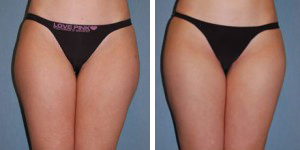 Liposuction Procedure Patient 1