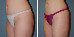 Liposuction Procedure Patient 2