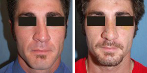 Rhinoplasty Procedure Patient 1
