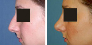 Rhinoplasty Procedure Patient 2