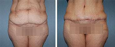 Tummy Tuck Procedure Patient 10