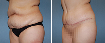 Tummy Tuck Procedure Patient 11