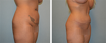 Tummy Tuck Patient 3