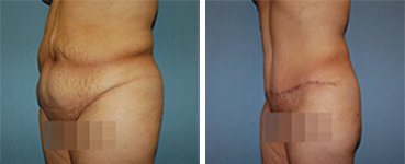 Tummy Tuck Procedure Patient 6