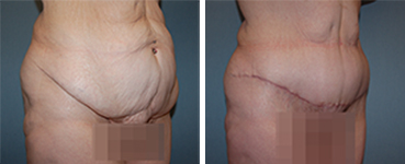 Tummy Tuck Procedure Patient 8