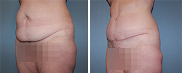 Tummy Tuck Procedure Patient 9