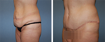 Tummy Tuck Procedure Patient 4